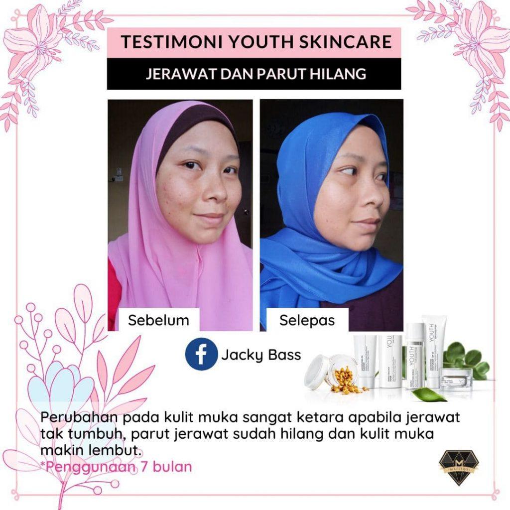 testimoni youth skincare untuk masalah jerawat dan parut
