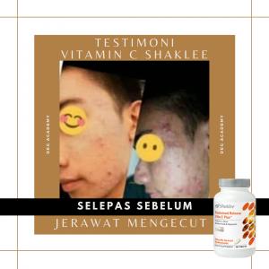 Testimoni Vitamin C Shaklee dan masalah jerawat
