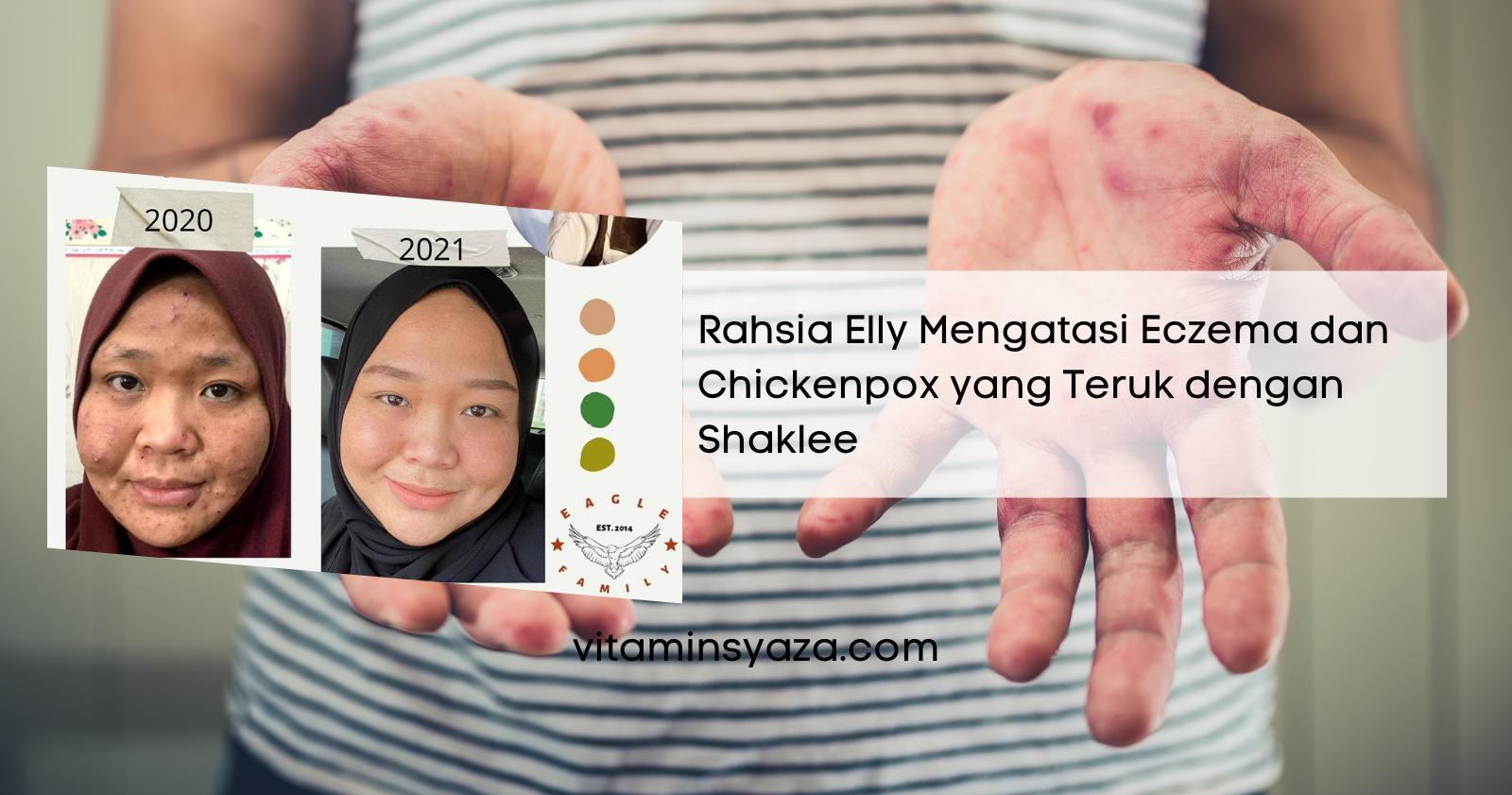testimoni vivix shaklee untuk eczema dan chickenpox yang teruk